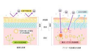s771x9999_アトピー性皮膚炎の皮膚
