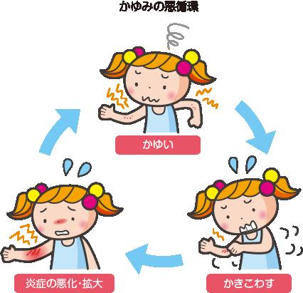 かゆみの悪循環