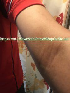 腕のアトピー